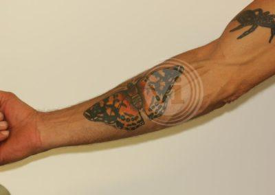 New-coloured-butterfy-tattoo-over-old-tattoo