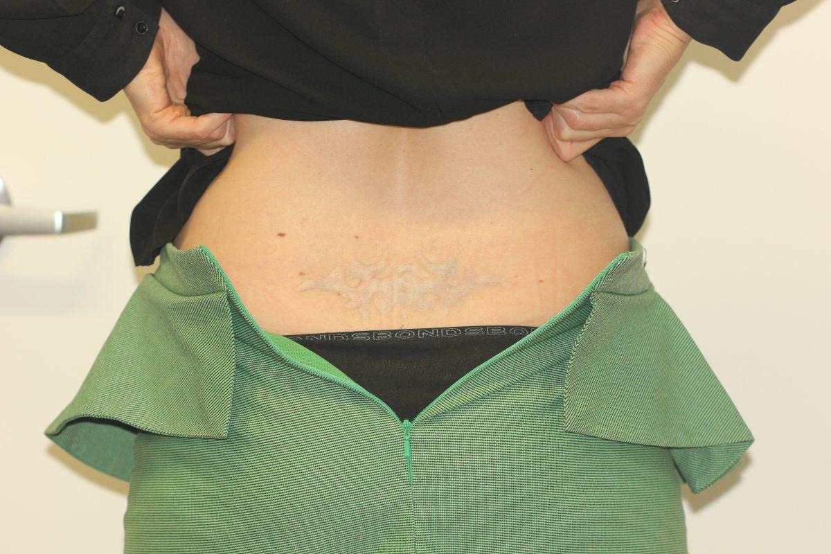 Scarred Black Lower Back Tattoo After Laser