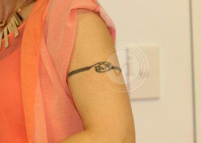 Small-black-armband-tattoo-before-laser